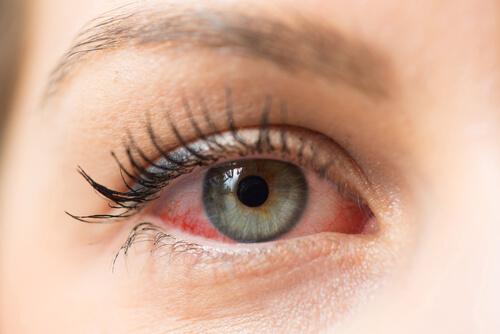 La conjuntivitis: síntomas, tratamiento y prevención