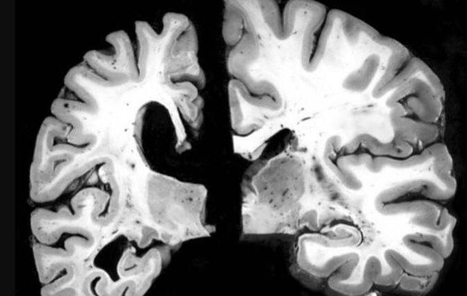 España el peor enemigo del alzheimer: identificadas las células 'culpables' de la pérdida de memoria