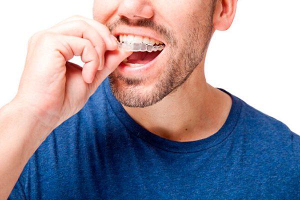 La ortodoncia también puede ser para adultos