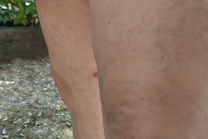 ¿Cómo eliminar las varices de las piernas?
