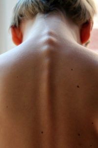 artorisis barcelona